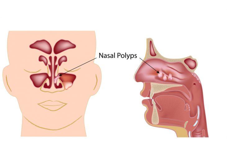 Полипы в носу как лечить в домашних условиях