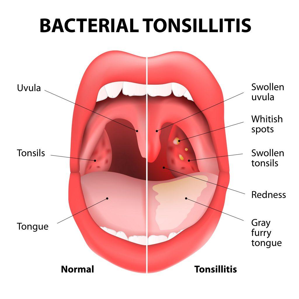 Симптомы ангины у ребенка температура thumbnail