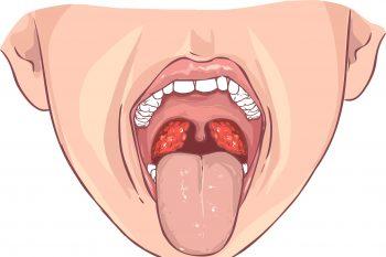 Как вылечить хронический тонзиллит
