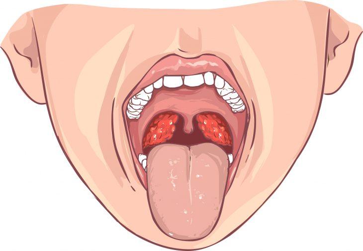 Хронический тонзиллит у взрослых: как лечить, симптомы. Как вылечить хронический тонзиллит навсегда