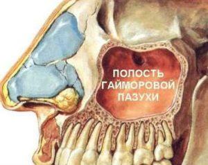 лечение гайморита_клиника
