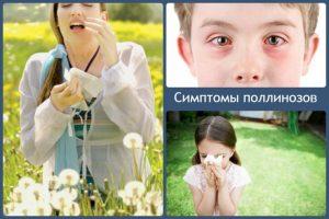 поллиноз_симптом