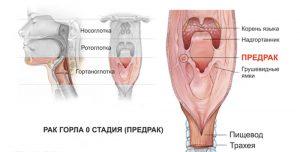 рак горла_стадия