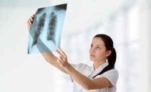 хронический кашель_лечение