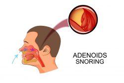 Аденоиды у взрослых