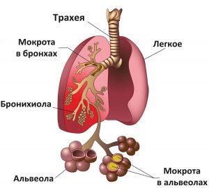 пневмония_симптомы