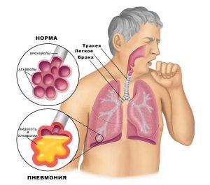 пневмония_диагностика