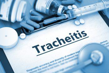 Трахеит у взрослых: симптомы, лечение
