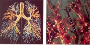 бронхоэктатическая болезнь_астма