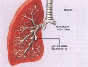 бронхоэктатическая болезнь_клиника