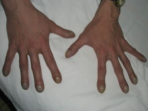 бронхоэктатическая болезнь_пальцы