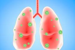 Вирусная пневмония: симптомы, причины, принципы диагностики и лечения