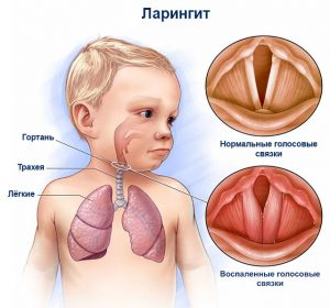 осиплость_клиника