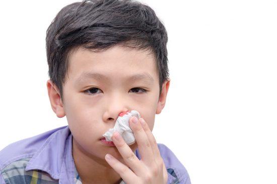 Носовые кровотечения у детей: причины, лечение, оказание первой помощи