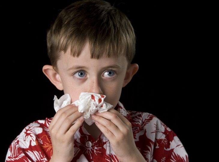 причины частых носовых кровотечений, первая помощь при носовом кровотечении и методы остановки кровотечения из носа