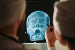 Рентгенография пазух носа: о чем расскажет врачу