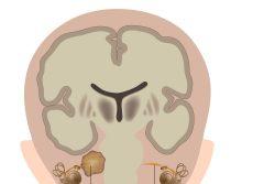 Невринома слухового нерва: симптомы, лечение