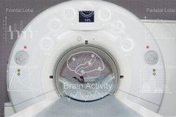 Компьютерная томография височных костей: показания, как проводят