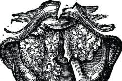 Папилломатоз гортани: виды, симптомы, современные методы лечения