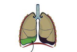 Гидроторакс легких: почему возникает и как лечить