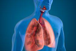 Сидероз легких: симптомы, лечение, экспертиза трудоспособности