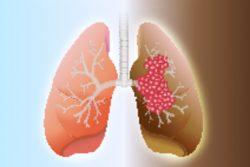 Рак легких: симптомы и признаки, современные методы лечения