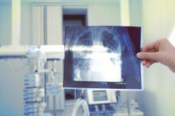 Силикоз легких: симптомы, лечение, вопросы трудовой экспертизы
