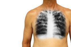 Инфильтрация легких: что это такое