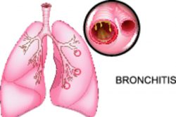 Острый бронхит: симптомы и лечение у взрослых