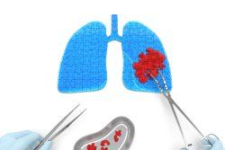 Кисты легких: виды, клинические проявления, лечение